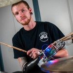 Trommis måtte amputere – nå har han fått robotarm