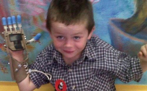 Livet ble forandret for Liam da han plutselig kunne kaste ball, plukke opp kronestykker og holde i gaffelen. Foto: Robohand